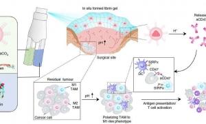 جلوگیری از بازگشت سرطان جراحی با توسعه ژل تحریک کننده سیستم ایمنی